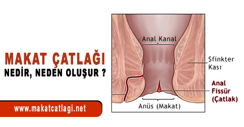 makat-catlagi