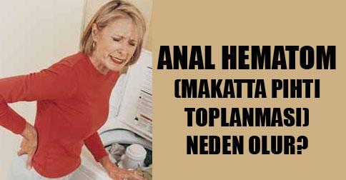 anal-hematom